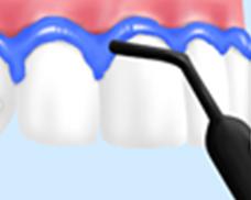 歯茎を守るためのダムを作る